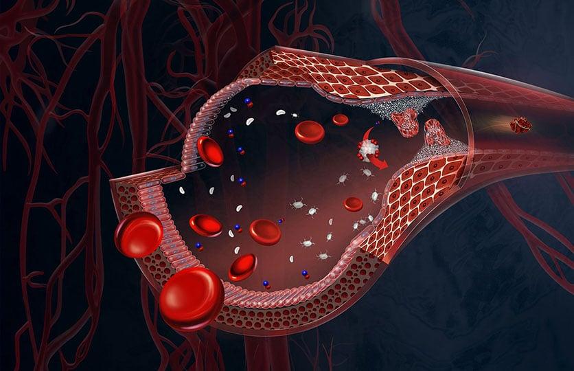 illustration médicale par Brian Harrold