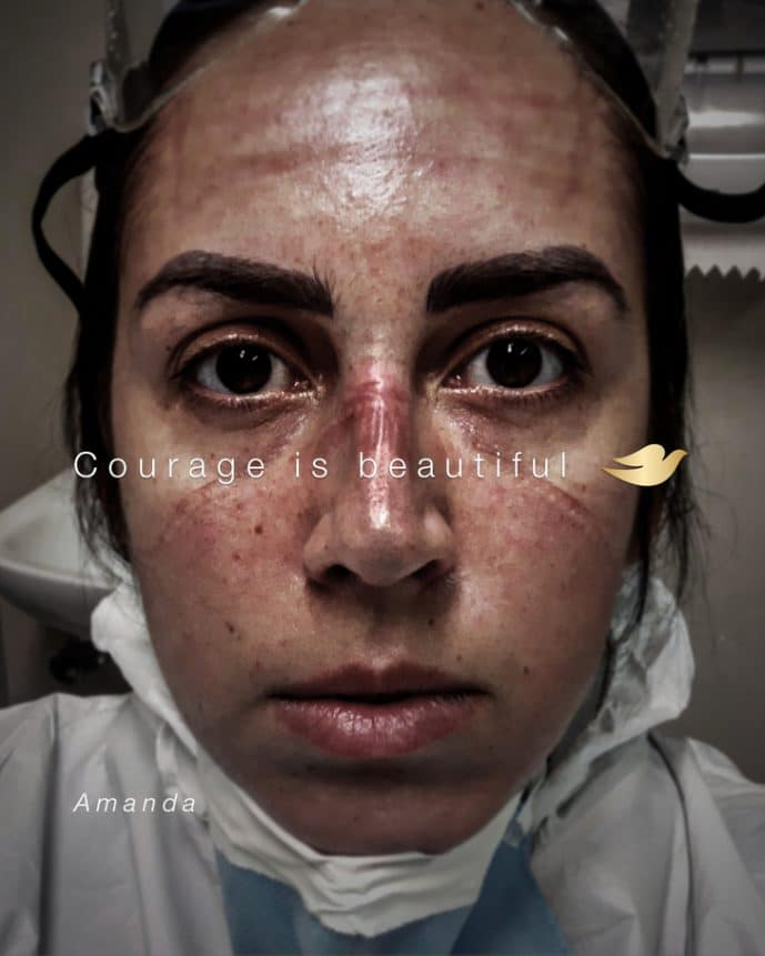 Courage is beautiful, Dove